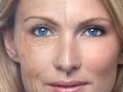 facials_antiaging400x300